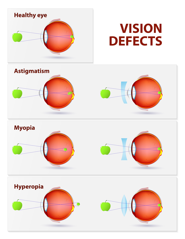 Myopia hyperopia and astigmatism - Myopia prevention program